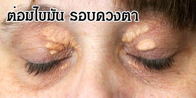 ปัญหารอบดวงตา